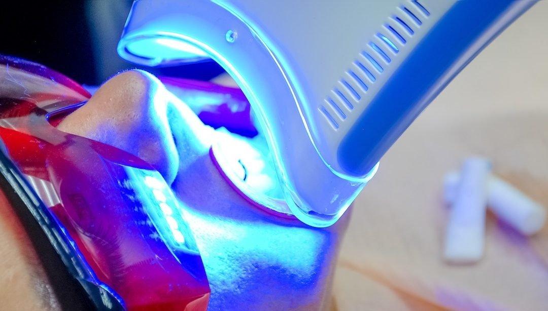 Cuidados após o Clareamento Dentário – Quais são realmente fundamentais?